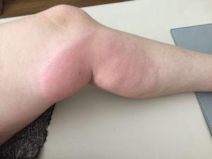 Mückenstich 2